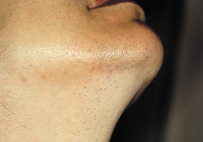 permanent hårborttagning ansikte