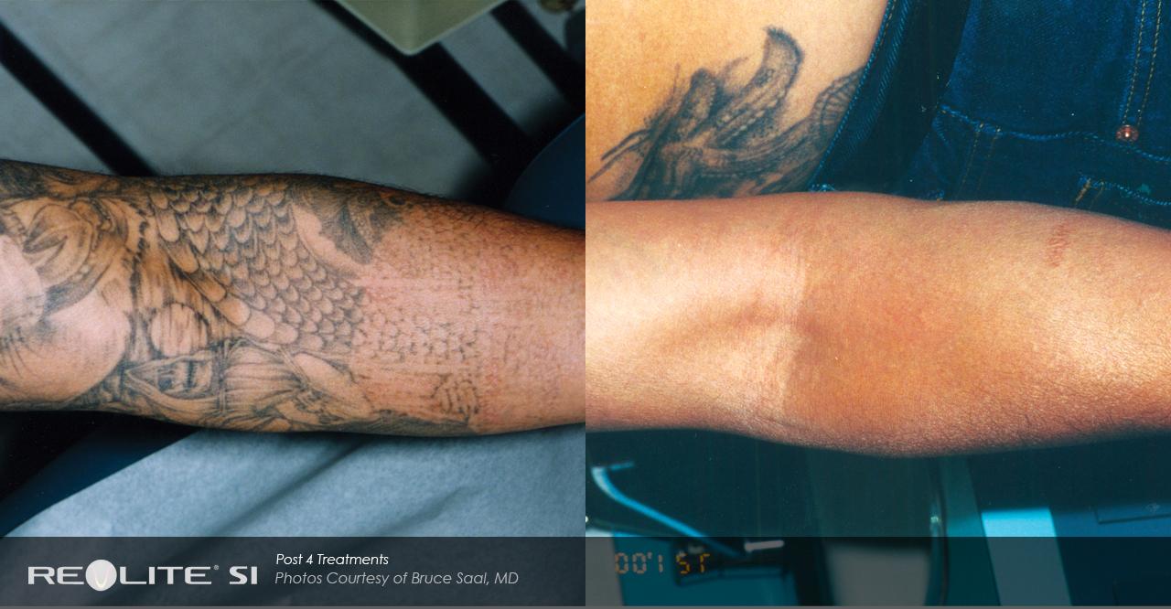 lasra tatuering pris